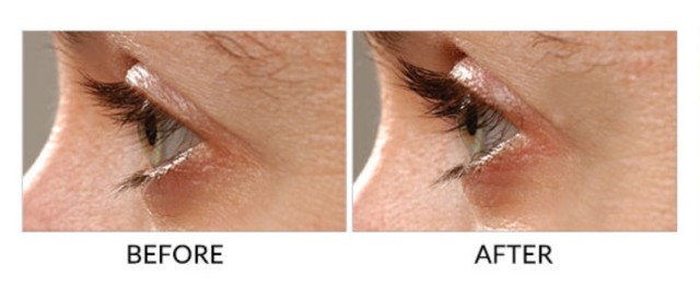 Before and After from RapidLash.com