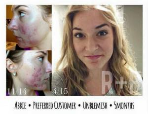 Unblemish Results